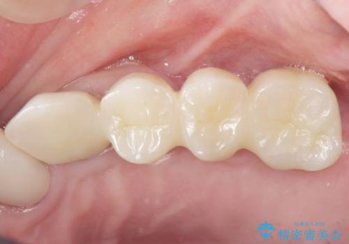 他院でインプラントできないと言われた 上顎洞底挙上術を併用したインプラント 50代男性の治療後