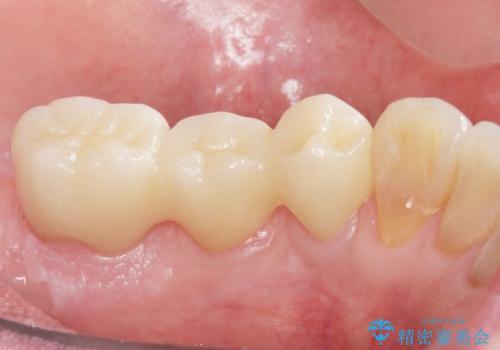 歯周病を治す 再生療法 50代男性の症例 治療後