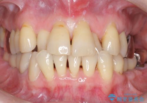 奥歯の違和感 再根管治療 40代女性の治療前