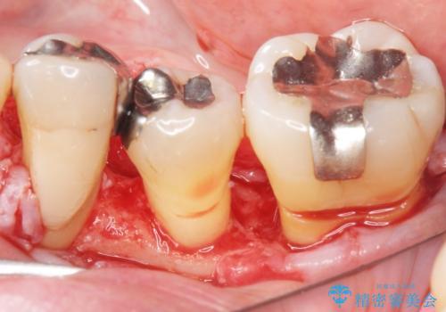 歯周病を治す 再生療法 50代男性の治療中