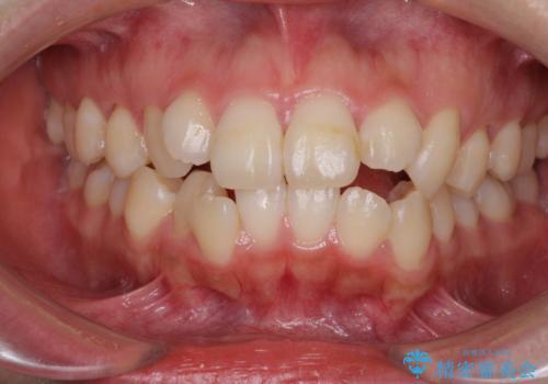 ダンサーとしての仕事を続けながら インビザラインによる抜歯矯正の症例 治療前