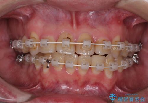 歯列全体のクロスバイトを治したい ワイヤー装置による矯正治療の治療中