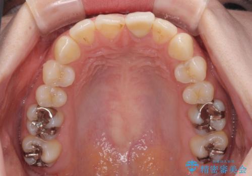 出っ歯に仕上がってしまった前歯 セラミッククラウンの作り替えの治療前