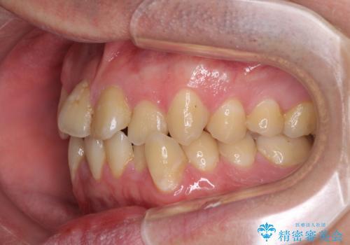 歯列全体のクロスバイトを治したい ワイヤー装置による矯正治療の治療前