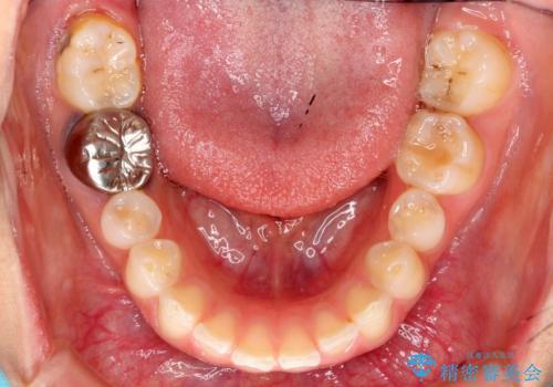 出っ歯を治したい 過蓋咬合の治療前