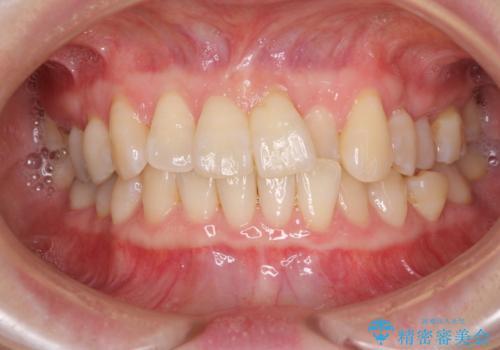 前歯のクロスバイト インビザライン矯正で改善の治療前