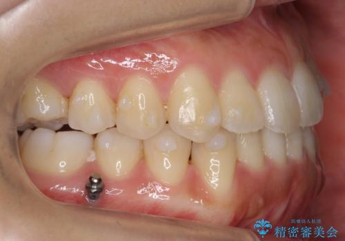 前歯のがたつき インビザラインで 下の奥歯を後ろに下げるの治療中