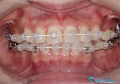 口が閉じにくい 口ゴボの抜歯矯正による改善の治療中