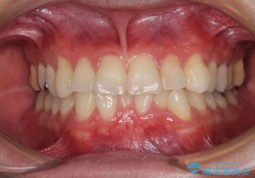 冷たいものがしみて奥歯が痛い 気になる歯並びも治したの症例 治療前