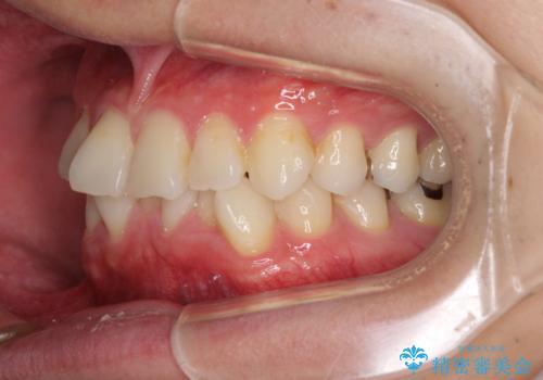 冷たいものがしみて奥歯が痛い 気になる歯並びも治したの治療前