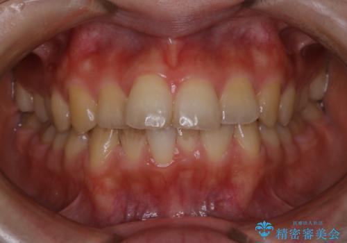 結婚式の前にPMTCで1日できれいな口元にの治療前