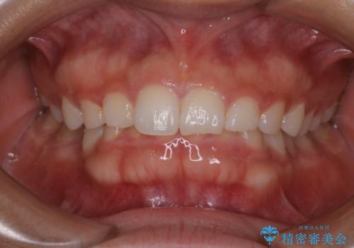 久しぶりの歯のクリーニング(Professional Mechanical Tooth Cleaning)の治療前