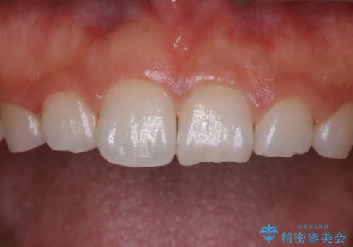 久しぶりの歯のクリーニング(Professional Mechanical Tooth Cleaning)の治療後