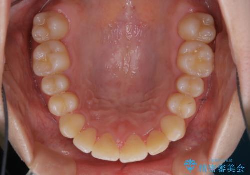 矯正治療終了後にPMTC(Professional Mechanical Tooth Cleaning)の治療前