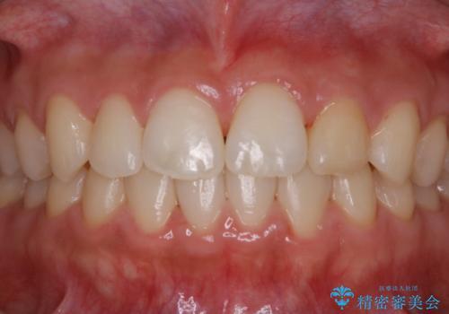 矯正治療終了後にPMTC(Professional Mechanical Tooth Cleaning)の治療後