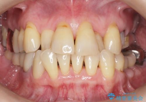 奥歯の違和感 再根管治療 40代女性の治療中