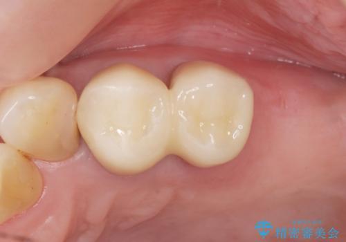 奥歯の違和感 再根管治療 40代女性の治療後