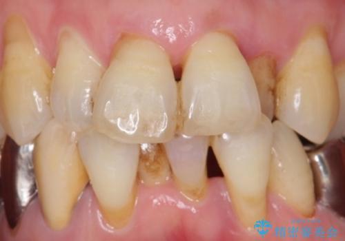 歯の動揺が気になる 低予算ではやく治したい 50代女性の症例 治療前