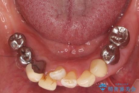 歯の動揺が気になる 低予算ではやく治したい 50代女性の治療前