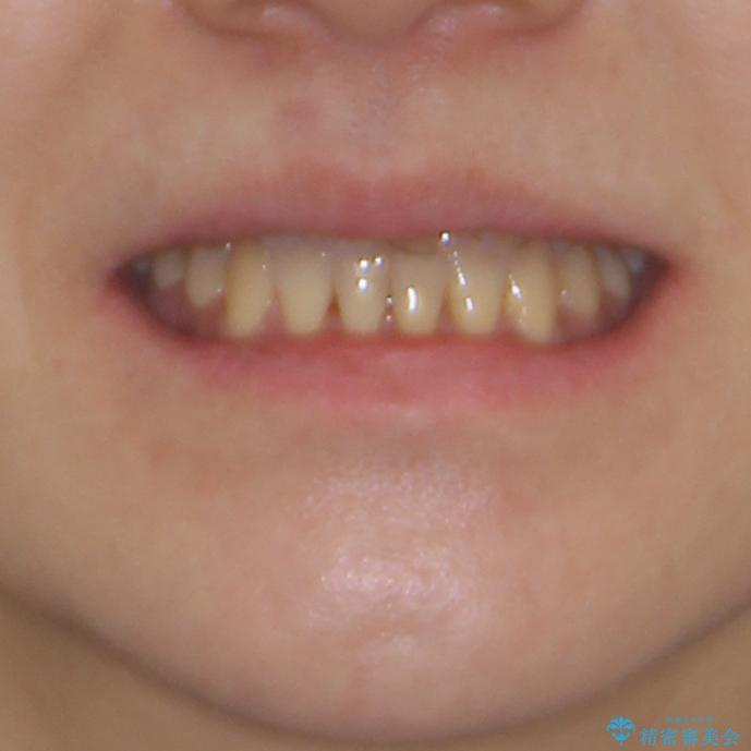 反対咬合で痛む前歯を改善 インビザラインによる矯正治療の治療後(顔貌)