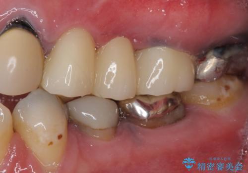 目立つ銀色の奥歯をセラミックに セラミックブリッジの治療後