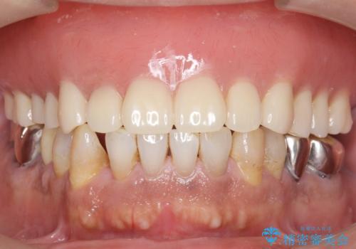 交通事故で前歯が折れた マグネットデンチャー 50代男性の治療後