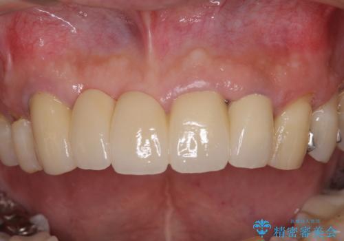 話しにくく見栄えの悪い前歯 オールセラミックブリッジの症例 治療後
