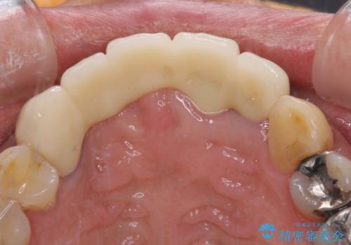 話しにくく見栄えの悪い前歯 オールセラミックブリッジの治療後