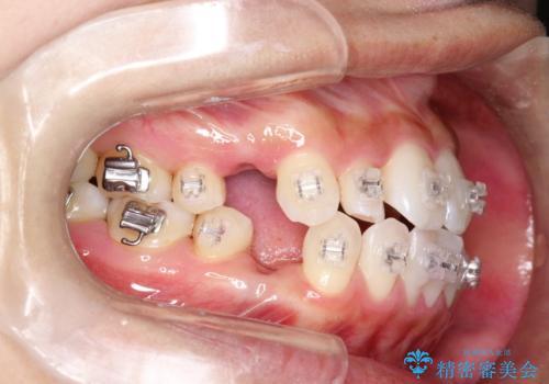 ワイヤー矯正治療中に気になる口臭をPMTCで予防の治療後