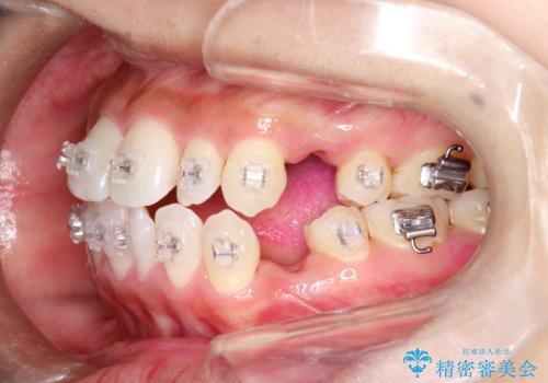 ワイヤー矯正治療中に気になる口臭をPMTCで予防の症例 治療後