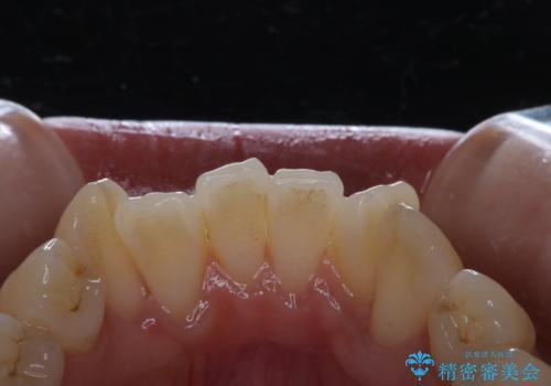 矯正治療開始前にPMTCでツルツルの歯にの治療前