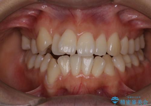 矯正治療開始前にPMTCでツルツルの歯にの治療後