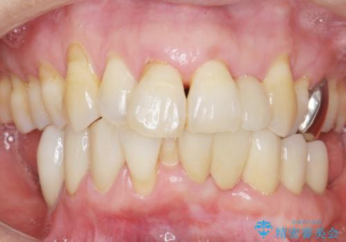 歯の動揺が気になる 低予算ではやく治したい 50代女性の治療後