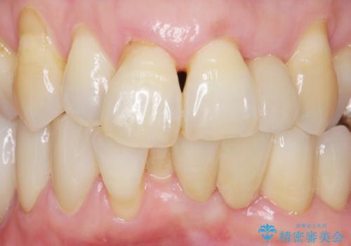 歯の動揺が気になる 低予算ではやく治したい 50代女性の症例 治療後