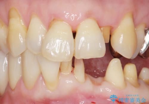 歯の動揺が気になる 低予算ではやく治したい 50代女性の治療中