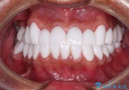 とにかく作り物のような真っ白な歯にしたい フルジルコニアクラウンによる補綴治療の症例 治療後