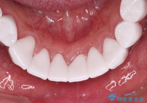 とにかく作り物のような真っ白な歯にしたい フルジルコニアクラウンによる補綴治療の治療後