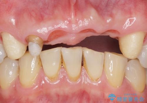 転んで前歯が2本ぬけた 自然なブリッジへ 60代男性の治療中