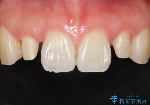 矮小歯 セラミッククラウンで綺麗に 30代女性の治療中