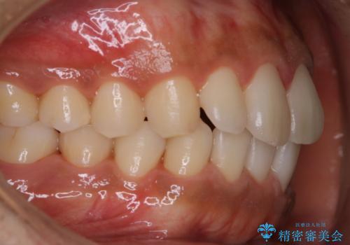 歯科医院でのメンテナンスの治療後