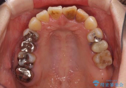 反対咬合で痛む前歯を改善 インビザラインによる矯正治療の治療中
