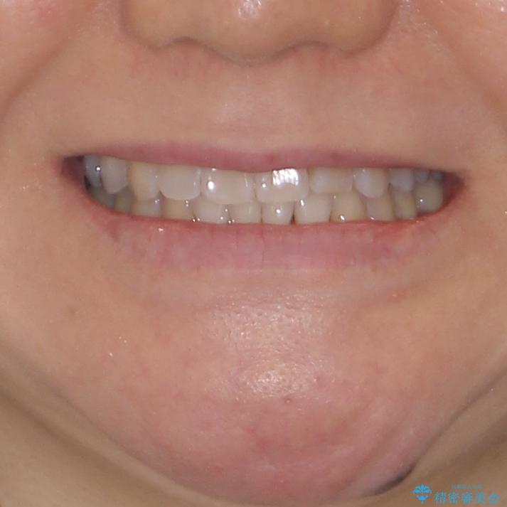 前歯のクロスバイト インビザライン矯正で改善の治療後(顔貌)