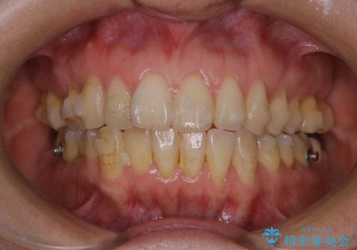 invisalignでのマウスピース矯正中もきれいな口元にの治療前