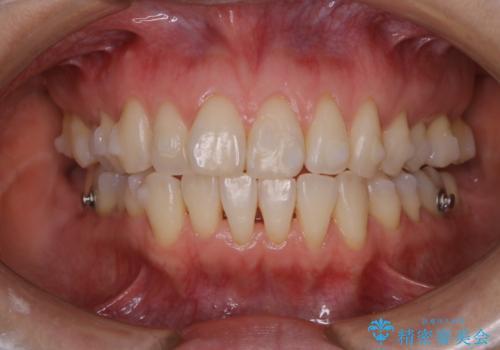 invisalignでのマウスピース矯正中もきれいな口元にの治療後