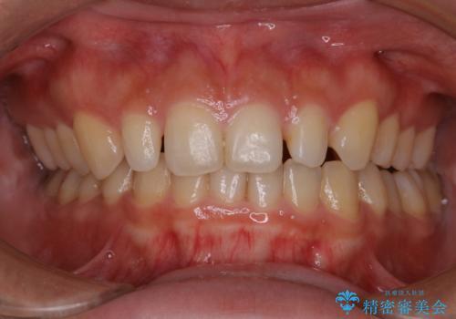 前歯のセラミック製作前にPMTCの治療前