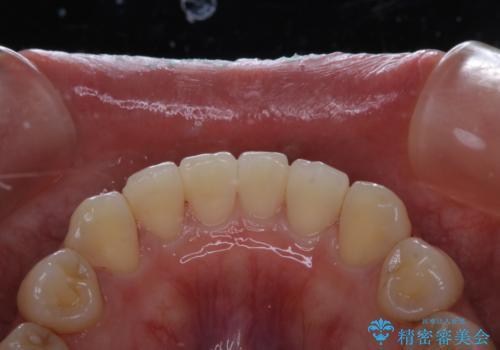 前歯のセラミック製作前にPMTCの治療後