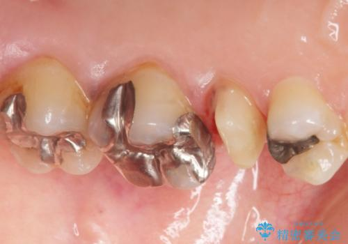 歯ぐきを押すと痛い 神経が死んでいる歯の治療 40代女性の治療中