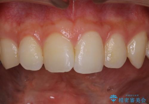 30代男性 虫歯の治療前にPMTCの治療前