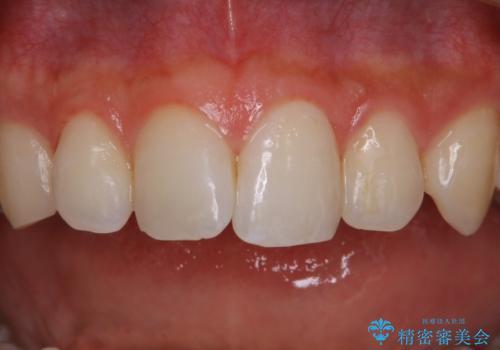 30代男性 虫歯の治療前にPMTCの治療後