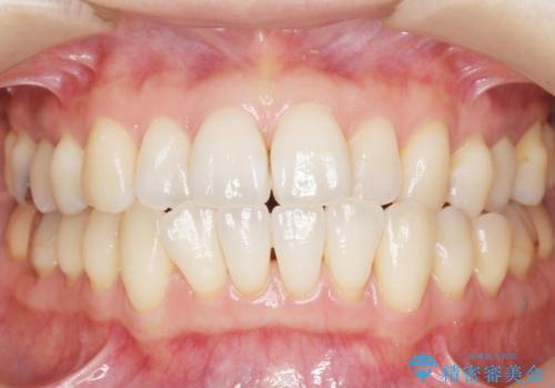 歯が欠けた セラミッククラウンで綺麗に 40代女性の治療後